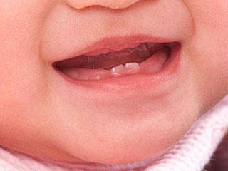 かわいい歯が!いつから赤ちゃんの歯は生え始める?注意する点は?のサムネイル画像