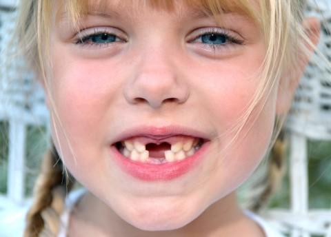 乳歯の生え代わりはいつ?抜ける順番は?乳歯のいろいろまとめ!のサムネイル画像